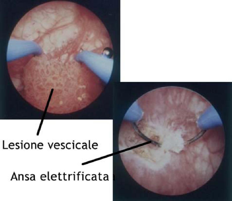 Papilloma virus uomo alla vescica, Papilloma vescicale ecografia