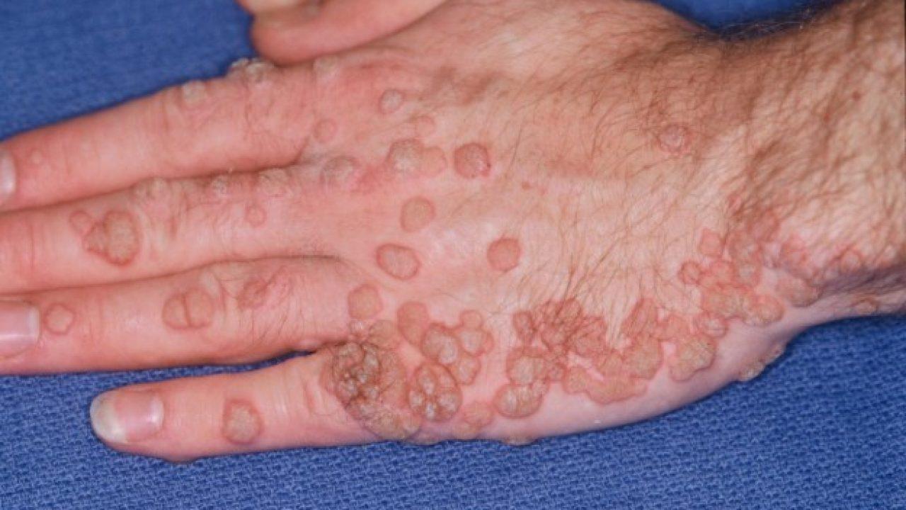 papilloma virus lavarsi le mani
