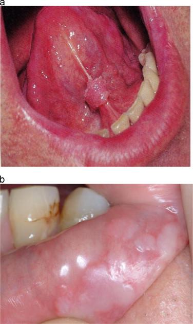 papilloma wart in throat)