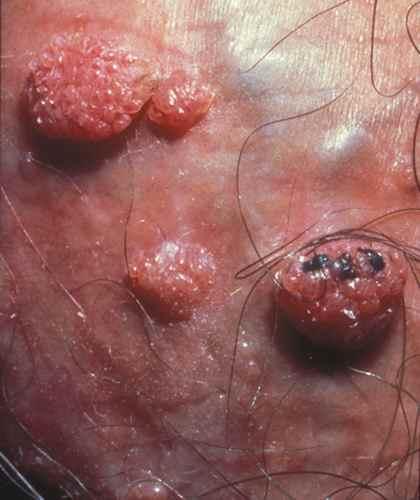 papillomavirus femme verrues