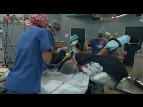 Operation pour papillomavirus