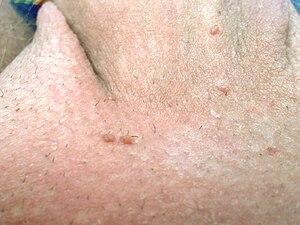 papillomavirus tratamento