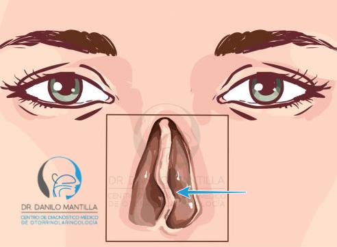 papiloma septo nasal