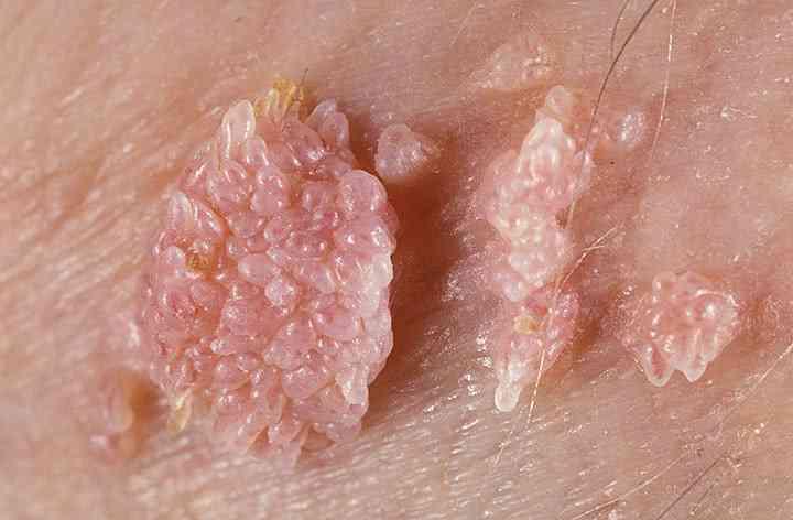 papiloma virus kod muskaraca