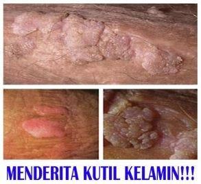 Penyakit hpv pria, Human papillomavirus perianal warts. Virusul HPV, asimptomatic