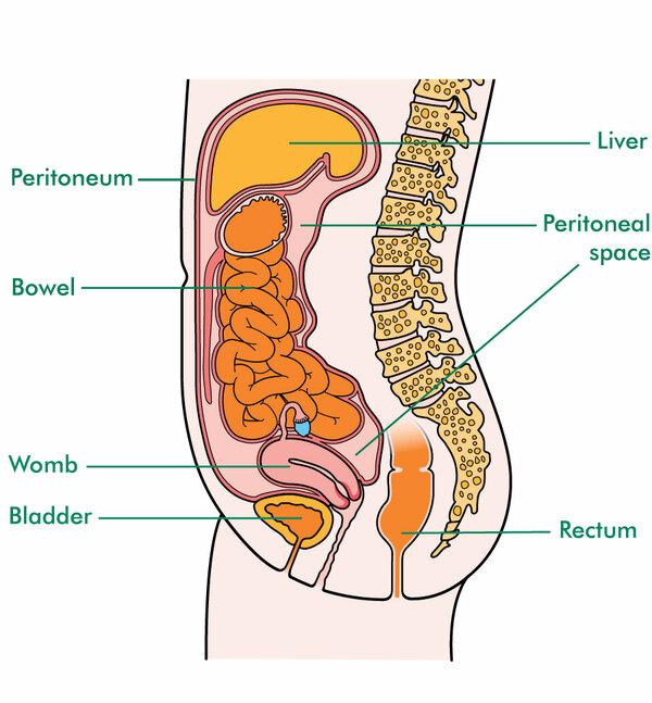 peritoneal cancer headache