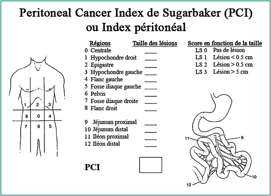 HIPEC | Causes Of Death | Oncology, Peritoneal cancer index hipec