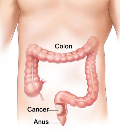 simptome in cancerul de colon papiloma escamoso genital tratamiento