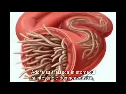 simptome paraziti