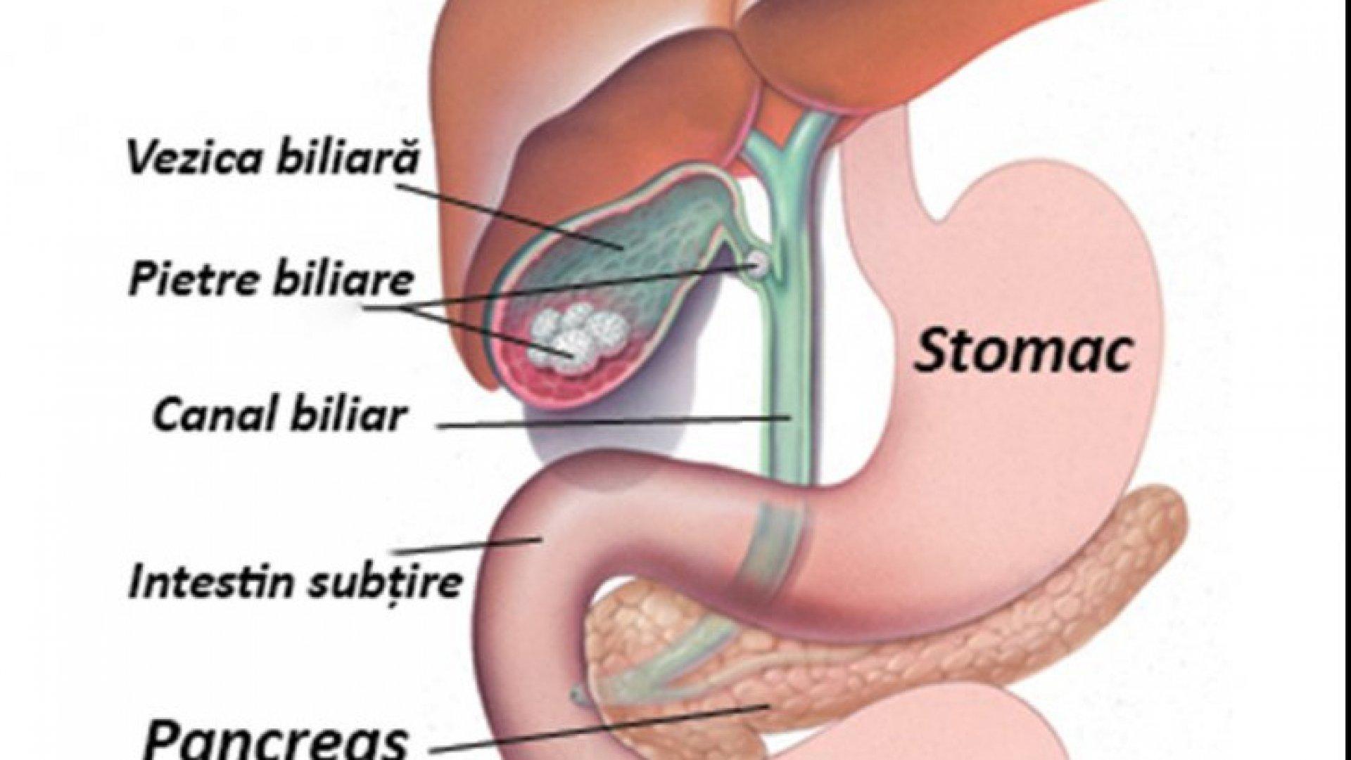 simptomele vezicii biliare