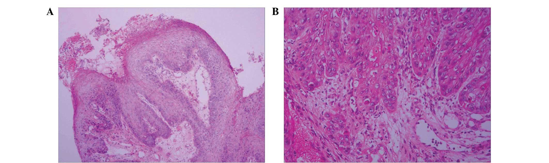 Squamous papilloma leg. Skin Cancer - eng2ro.ro, Squamous papilloma skin histopathology