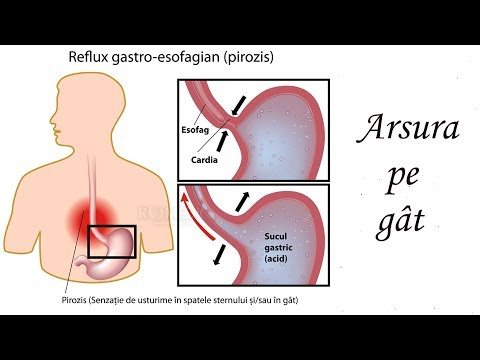 tratament parazitic al gâtului)