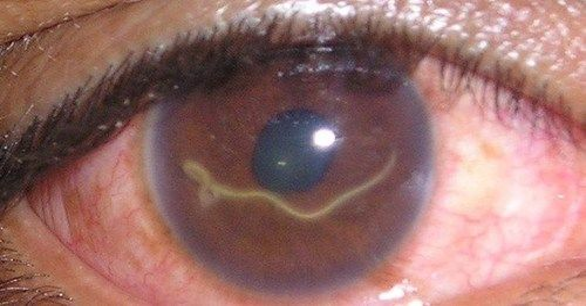 tratament pentru ochi pentru paraziți)