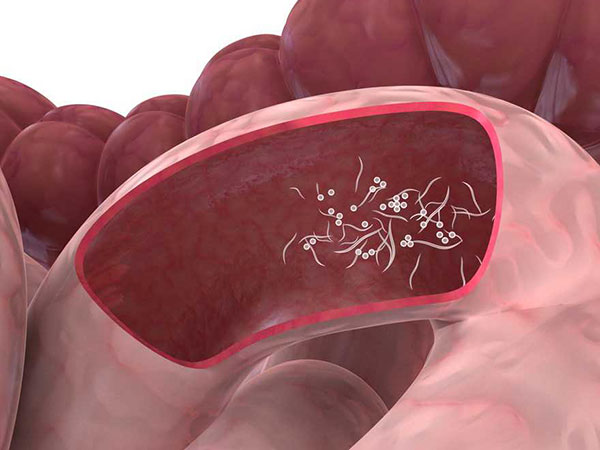 schistosomiasis guidelines paraziți în stomac nz