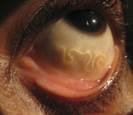 viermi în tratamentul nasului și gâtului