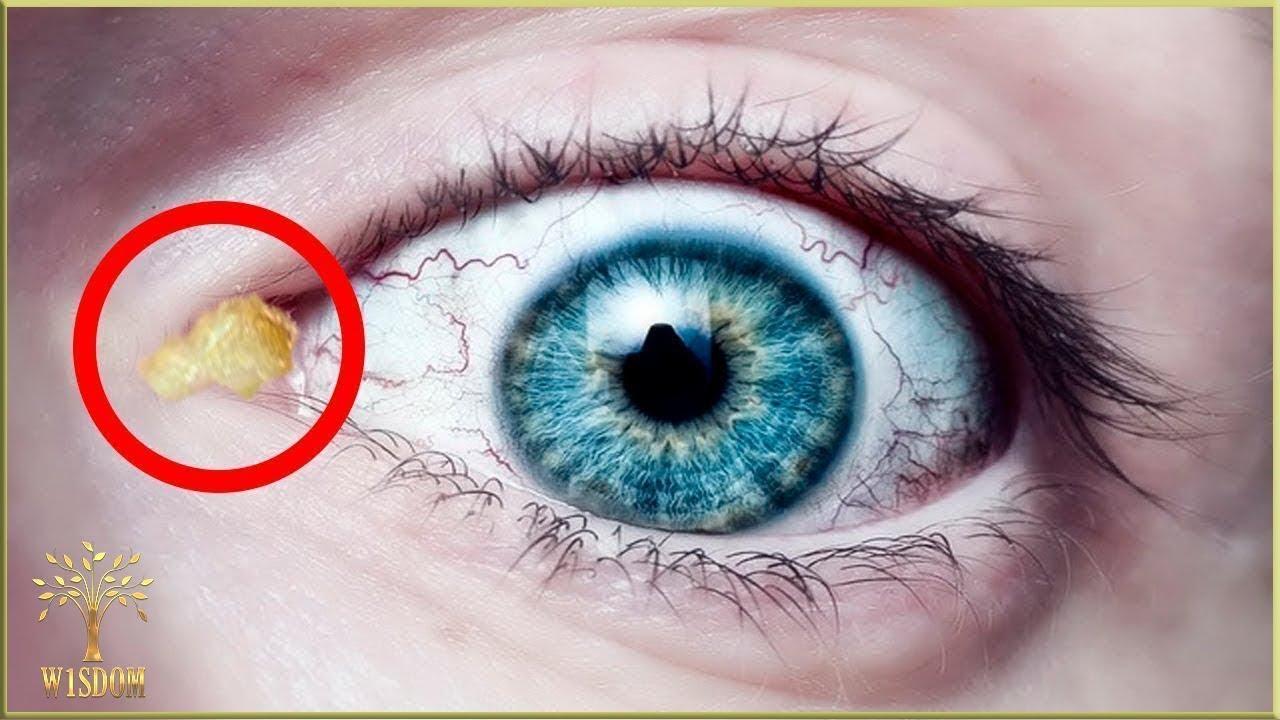 vindecă viermi în ochii lui)