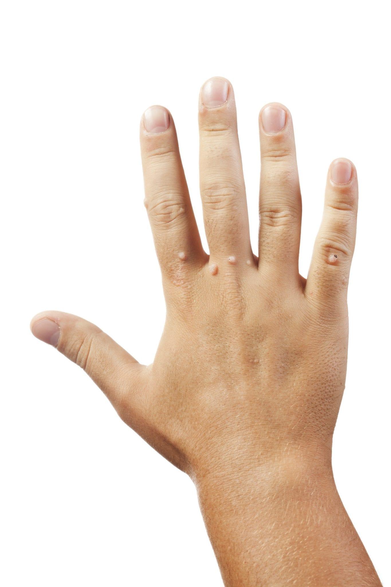 Virus del papiloma en manos, Virus del papiloma humano cancer