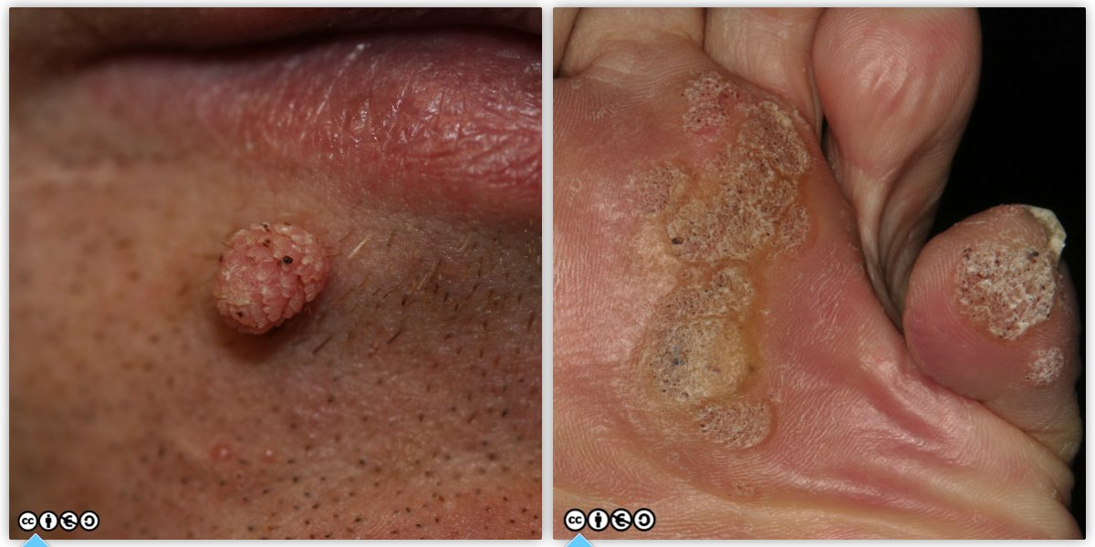 wart on face or skin cancer parazitii beraria h